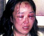 Gương mặt tím tái của Zhao Yan bị đặc vụ Mỹ đánh nhầm năm 2004